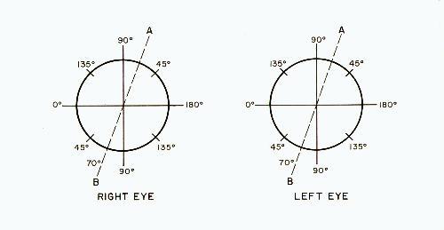 The Myopia Myth